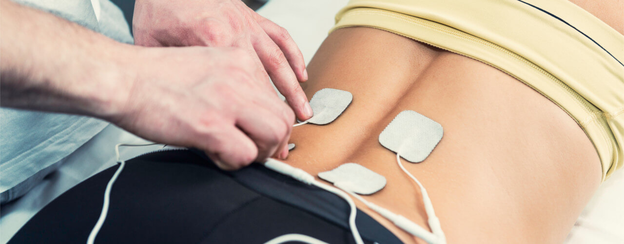 electrical stimulation figurelli integrated wellness